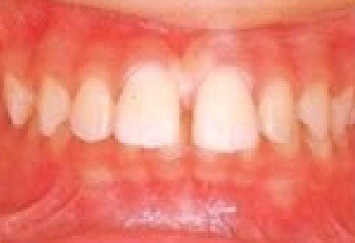 でっ歯 治療前