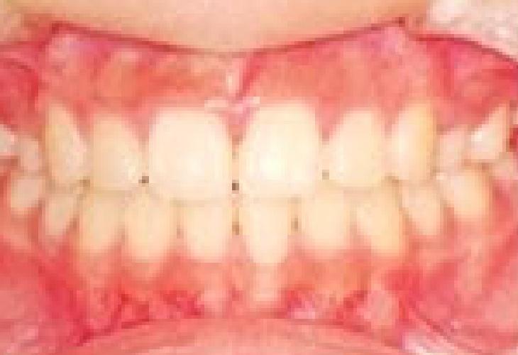 乱ぐい歯・八重歯 治療後